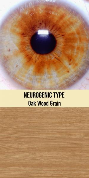 Neurogenic Type / Oak Wood Grain